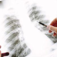 交通事故で胸腹部の後遺障害でレントゲンを見ている医師